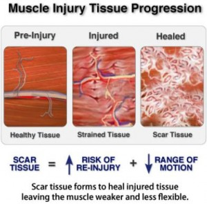 Scar tissue forms to heal injuries